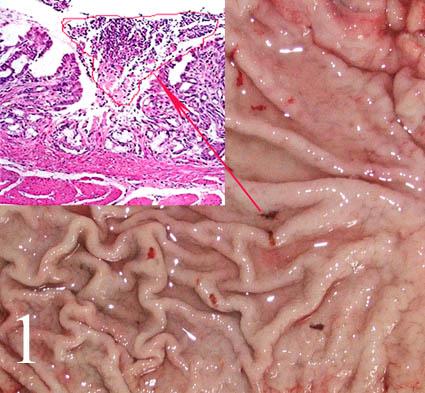 Как лечить грибок кишечника