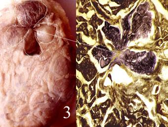 Как лечить щитовидку народными средствами и киста
